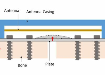 Telemetric Load-Sensing for the Monitoring of Orthopedic Fracture Healing